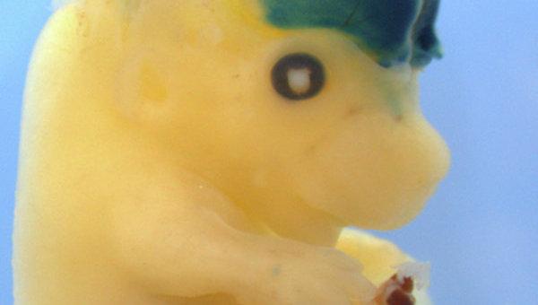 Мозг у этого зародыша мыши заметно больше обычного из-за пересадки человеческой мусорной ДНК