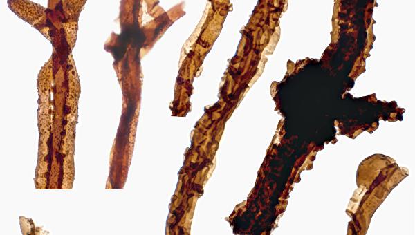 Грибок Tortotubus, древнейший на Земле житель суши