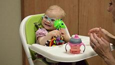 Малышка впервые услышала голос матери благодаря кохлеарному имплантату