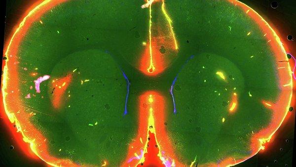 Ток красителя в мозге спящей мыши, который позволил выявить механизм очищения мозга от мусора